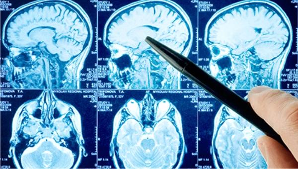 Los ataques cerebrovasculares son la principal causa de muerte en Uruguay, principalmente en mujeres, superando la enfermedad coronaria